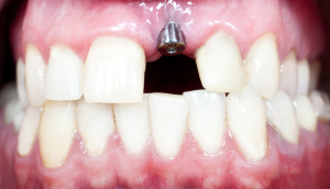 dental implant on front teeth