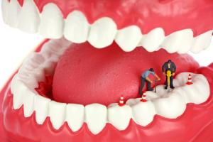 men drilling teeth