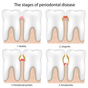 Gingivitis vs. Periodontitis