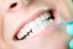 why you shouldn't skip dental cleanings