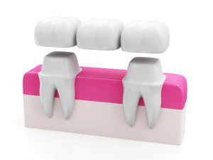 dentalbridgepink